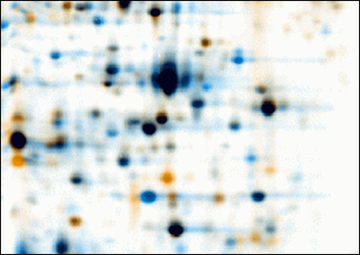 Two-dimensional gel electrophoresis - Warping: Images of two 2D electrophoresis gels after warping. First image is colored in orange, second one colored in blue. Corresponding spots overlap after warping. Common spots are colored black, orange spots are only present (or much stronger) on the first image, blue spots are only present (or much stronger) on the second image.
