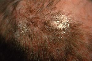 ID#:4809 - : The favus on this patient's scalp...