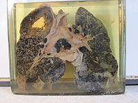 8.- Miner's lung with silicosis and tuberculosis.jpg