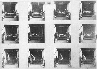 Albert Londe - Chronophotographic image by Londe of what was described as an attack of hysteria.
