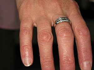 English: Wedding anniversary diamond ring.