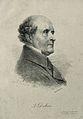 Antoine, Baron Dubois. Lithograph by A. Devéria, 1823, after Wellcome V0001680.jpg