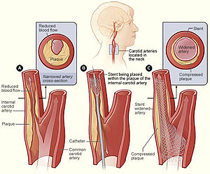 Carotid stenting - Image: Cad stentplacement