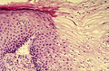 Diethylstilbestrol (des) cervix (29).jpg