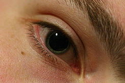 Dilated pupil.gk.jpg