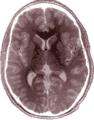 FastFission-brain-bild52.png