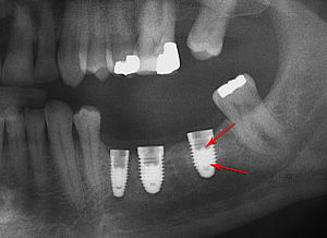 Abutment (dentistry) - Fracture of abutment screws in 3 consecutive implants due to severe over-torqueing.