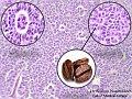Granulosa cell tumor ovary.jpg