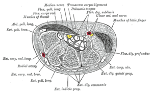 Phalen maneuver - Transverse section across the wrist and digits. (The median nerve is the yellow dot near the center. The carpal tunnel is not labeled, but the circular structure surrounding the median nerve is visible.)