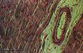 Heart (265 22) Mammal.jpg