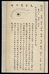 Illustration from Ming Chinese ophthalmology text, Ms copy Wellcome L0039702.jpg