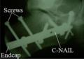 Intraoseous calcaneal nail C-Nail - rtg.png
