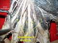 Lumbricals muscles.jpg