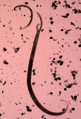 Cannibalism - Nematode Mononchidae eating another Mononchidae.
