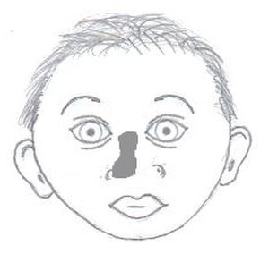 Facial cleft - Image: Nasal dysplasia