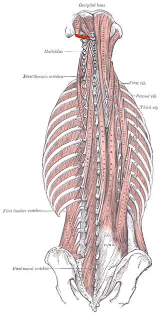 Obliquus capitis inferior muscle - Deep muscles of the back.  (Obliq. infer. labeled at upper left.)