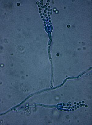 Penicillium - Penicillium sp. under bright field microscopy (10 × 100 magnification) with lactophenol cotton blue stain