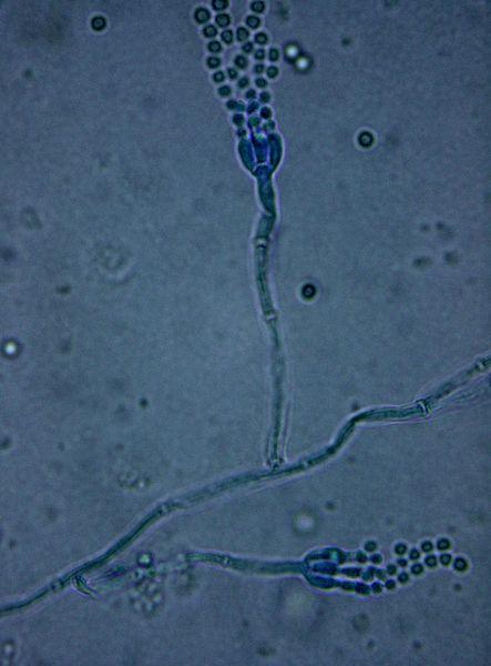 File:Penicillium Spp..jpg