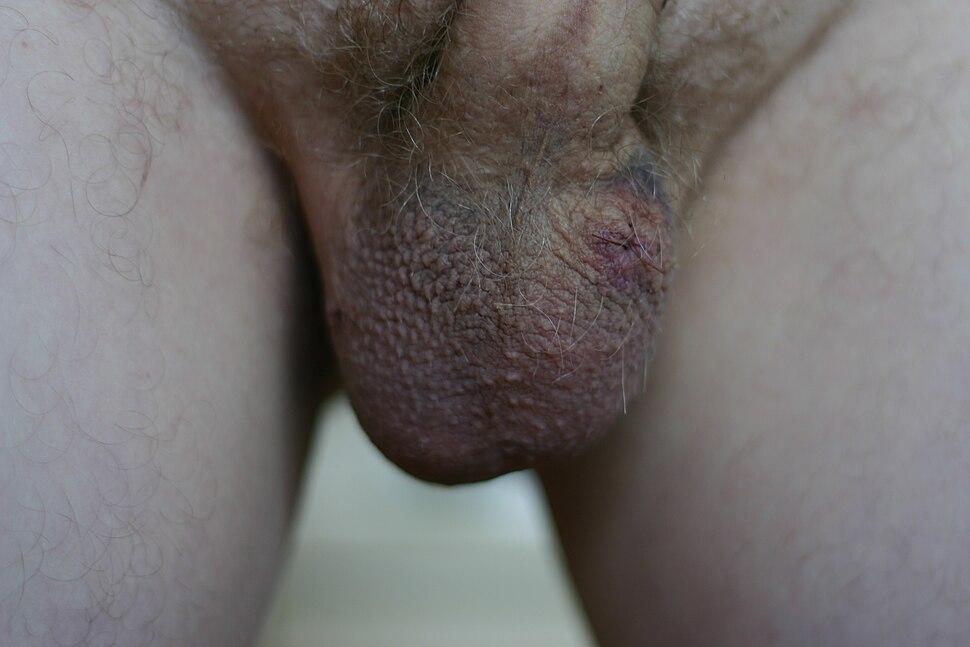 Post-vasectomy