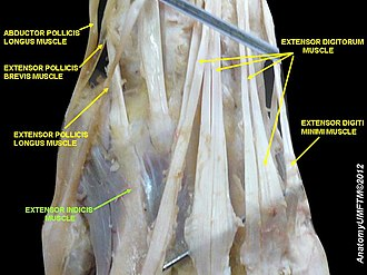 Extensor indicis muscle - Image: Slide 10SSSS