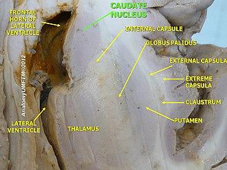 Caudate nucleus - Image: Slide 2gg