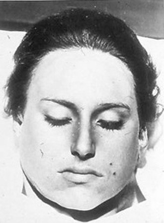 Sumter County Does - Mortuary photograph of female victim