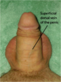 Superficial dorsal vein of the penis (flaccid).png