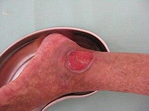Ulcus cruris in secondary Sjögren's syndrome.JPG
