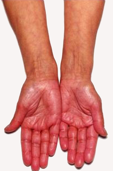 Hyperpigmentace na dlani