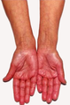 A 69-Year-Old Female with Tiredness and a Persistent Tan 02.png