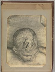 Album of Paris Crime Scenes - Attributed to Alphonse Bertillon. DP263697.jpg