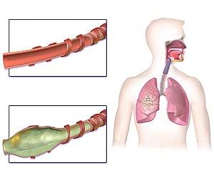 Bronchiectasis Normal vs Affected Airway.jpg