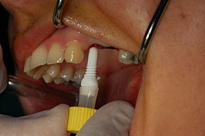 English: CeraRoot zirconia dental implant (met...