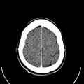 Computed tomography of human brain (26).png