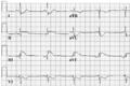 De-ECG atrial rhythm now sr (CardioNetworks ECGpedia).png