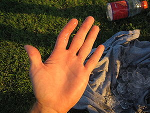 Photograph of dislocated left index finger