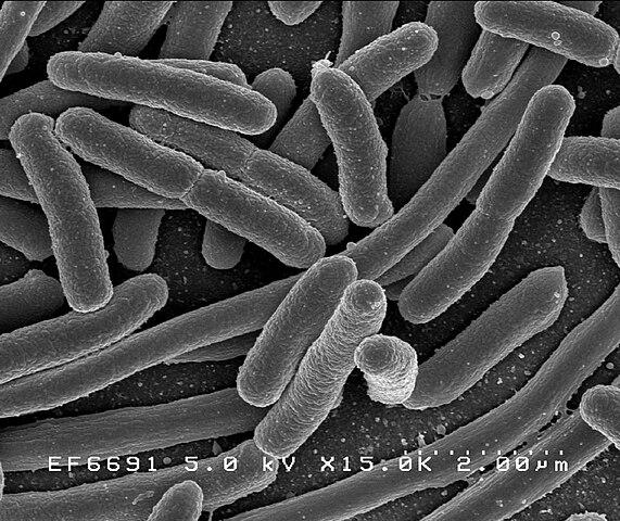 Baktérie  Escherichia coli žijúce v hrubom čreve pod elektrónovým mikroskopom
