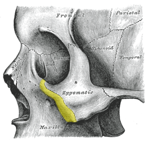 Zygomatic process of maxilla - Left zygomatic bone in situ. (Zygomatic process of maxilla is shown in yellow.)