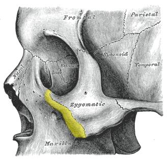 Zygomatic process of maxilla - Left zygomatic bone in situ. (Zygomatic process of maxilla is shown in yellow.)