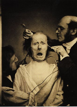 "Duchenne de Boulogne - Demonstration of the mechanics of facial expression. Duchenne and an assistant faradize the mimetic muscles of ""The Old Man."""