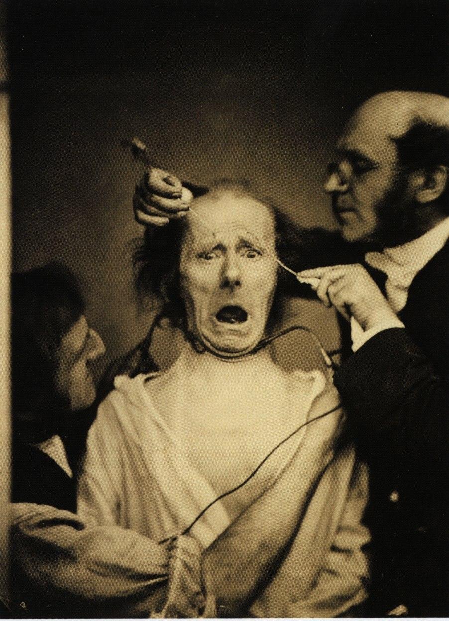 Guillaume Duchenne de Boulogne performing facial electrostimulus experiments