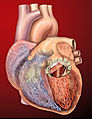 Heart with artificial mitral valve (450141959).jpg