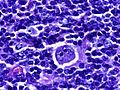 Hodgkin's lymphoma 40X.jpg