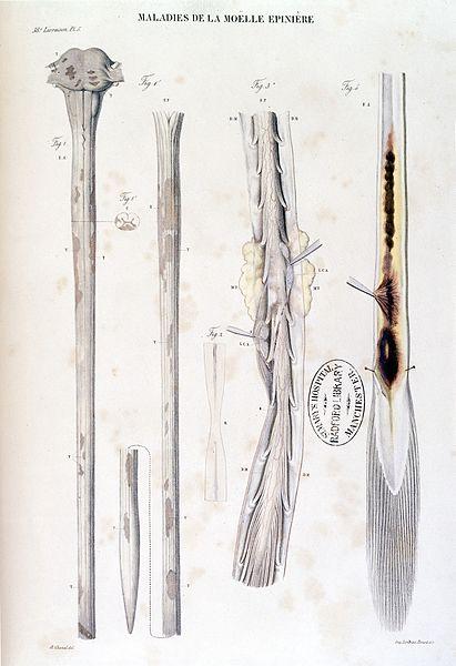 File jean cruveilhier anatomie pathologique du corps for Interieur du corps humain photo