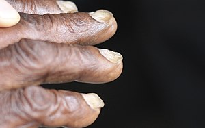 Koilonychia iron deficiency anemia.jpg