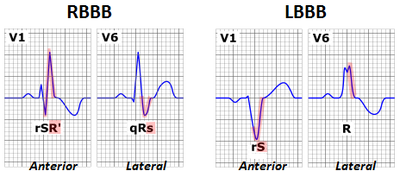 Right bundle branch block and a left bundle branch block in both cases