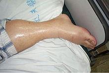 Diabetes e dor no joelho
