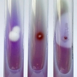 Three tubes of opaque purple growth medium, the left showing a cottony white colony, the middle with a small red and the right with one with a small colony surrounded by a clear halo