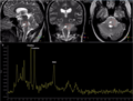 Palliative Care Options for a Young Adult Patient with a Diffuse Intrinsic Pontine Glioma - Fig. 1.png