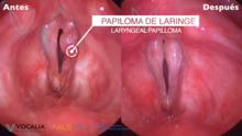 que es la papilomatosis